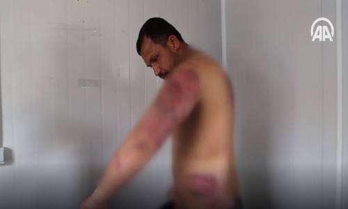 Yunanistan'a Geçen Düzensiz Göçmenler Dövülerek Türkiye'ye Atıldı!